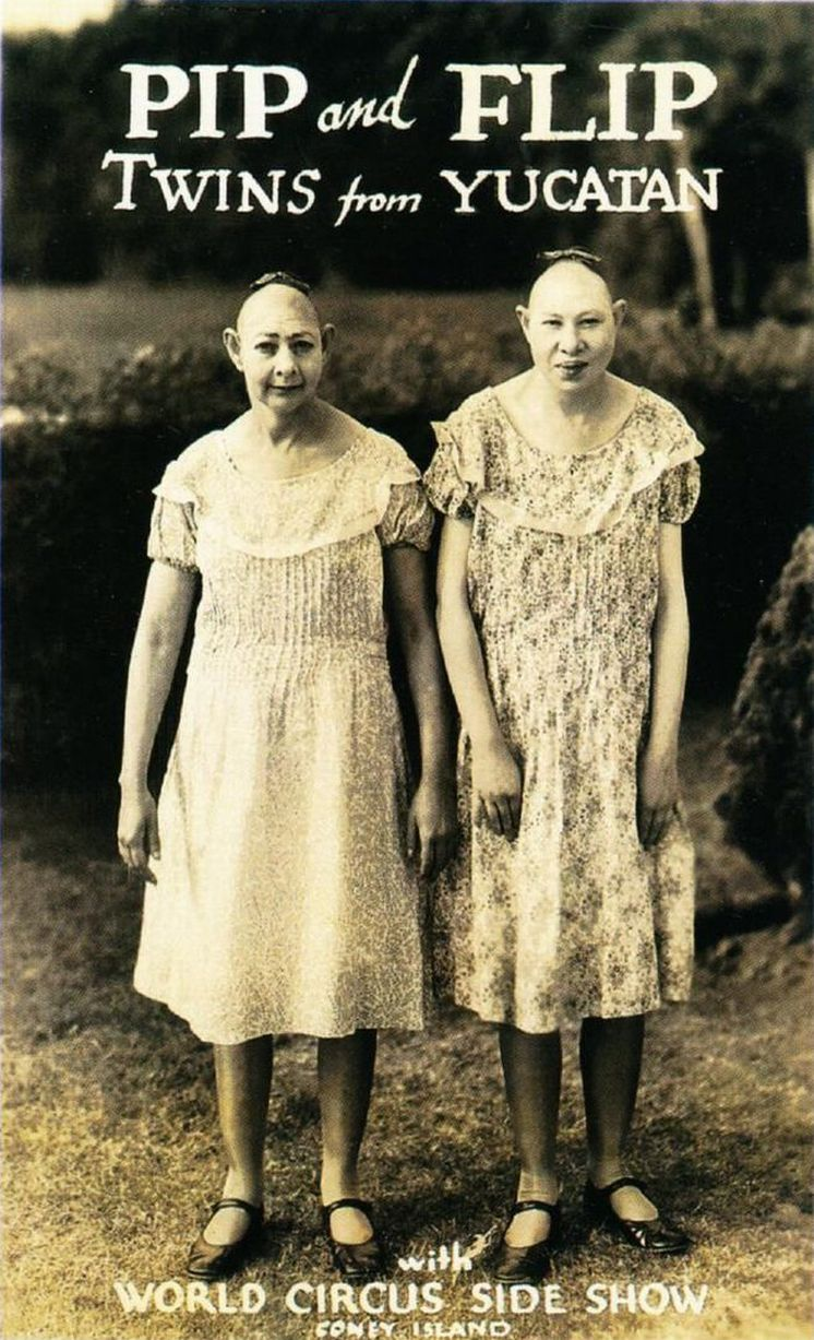 PAY-TWO-HEADED-CONJOINED-TWINS-ALBINO-SISTERS-ANCIENT-AZTEC-CHILDREN-AND-A-DOLL-FAMILY-FASCINATING-PH